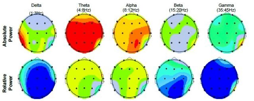 Adult ADHD Brain